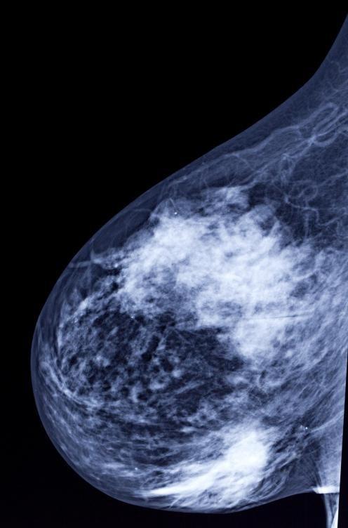Врачи будут заказывать второй тест на маммограмму, если исходные фильмы были размытыми или неясными.