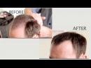 Что делать если лысеешь Загуститель волос отзывы Как бороться с облысением у мужчин