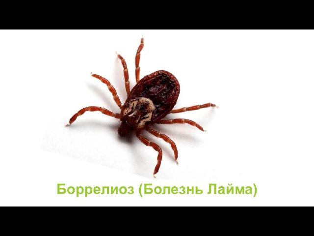 Боррелиоз (болезнь Лайма)