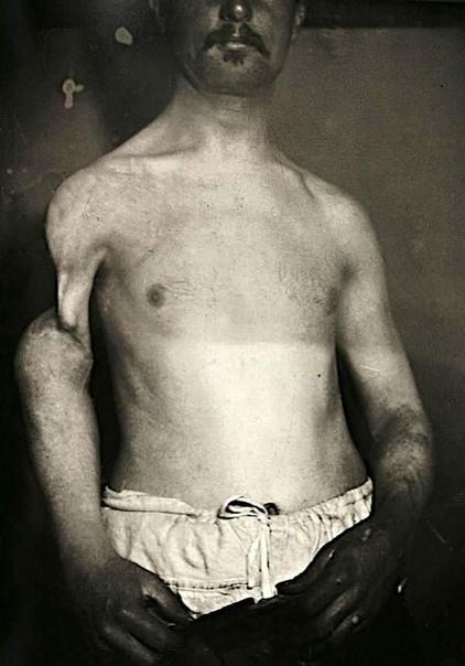 Люди с мутациями на снимках 19-го века Эти редкие сники, датируемые 1890-ми годами, были сделаны как часть